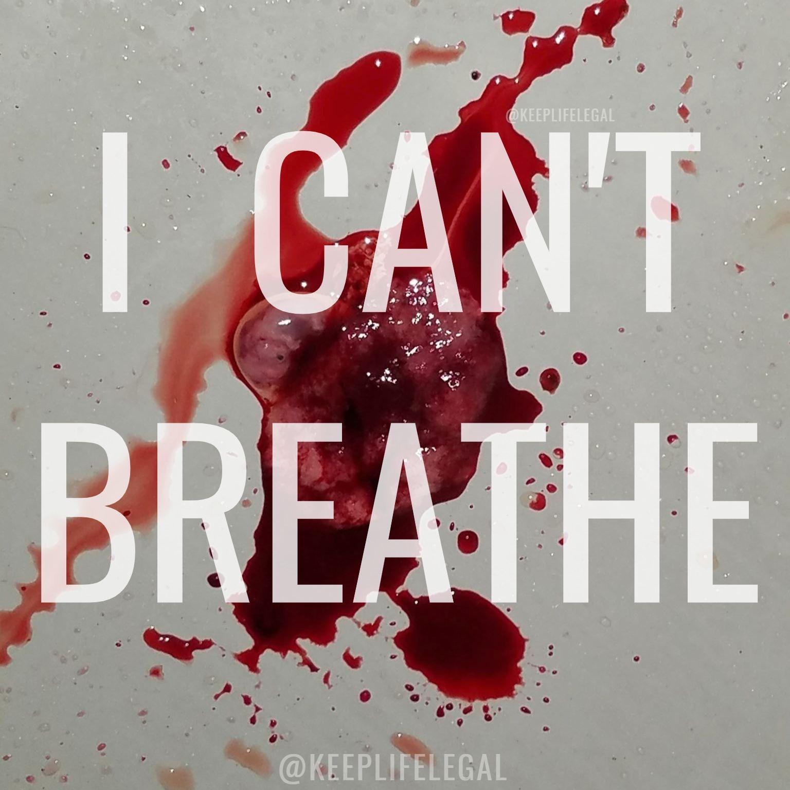 icantbreathe - Copy